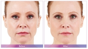 Juvederm Before and After 3